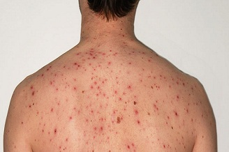 How To Get Rid Of Old Acne Scars Archives Ayucliniko Optimum Health Begins Here