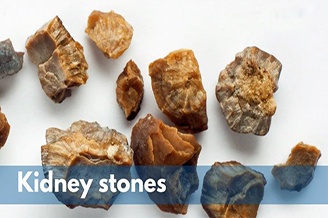 How To Pass A Kidney Stone In 24 Hours Archives Ayucliniko Optimum Health Begins Here