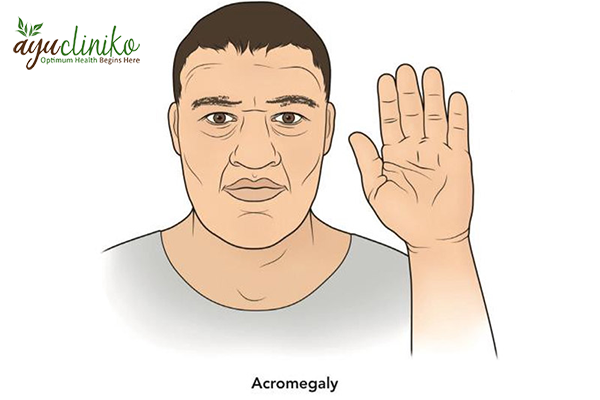 Can Acromegaly Be Treated by Ayurveda?