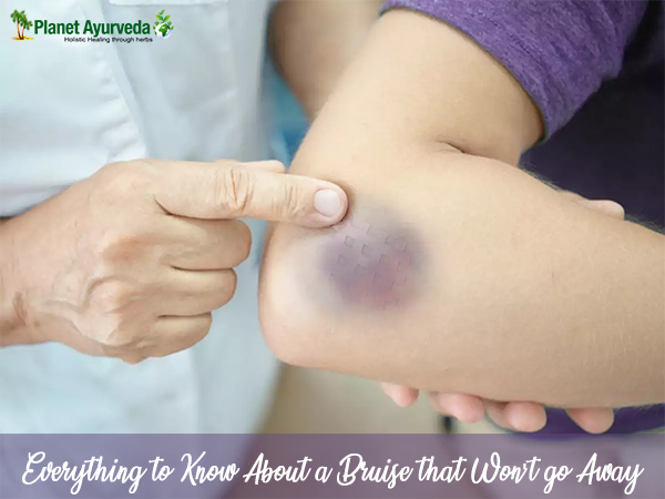 Everything to Know About a Bruise that Won't Go Away